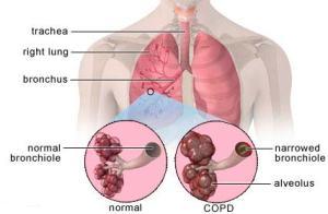 Obat batuk bronkitis